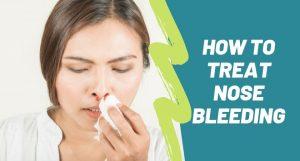 how to treat Nose bleeding